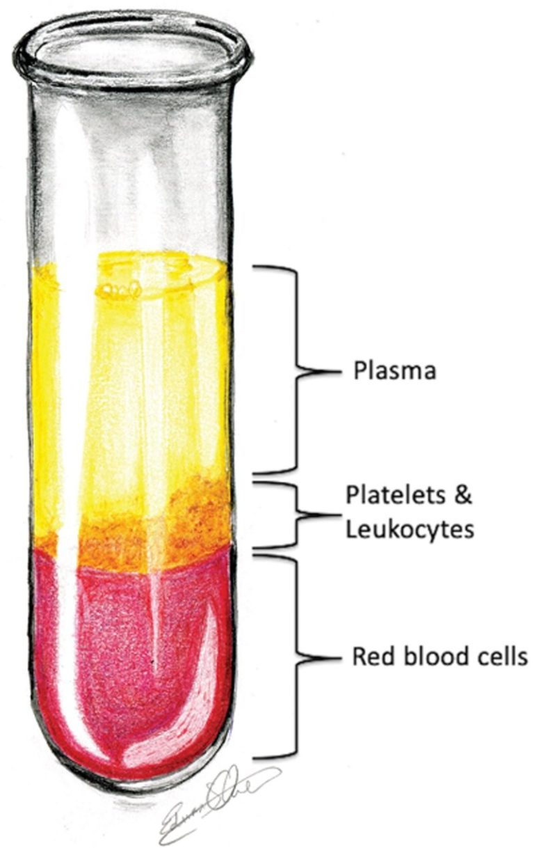 The evolving position of platelet-rich plasma (PRP) in cosmetic surgery
